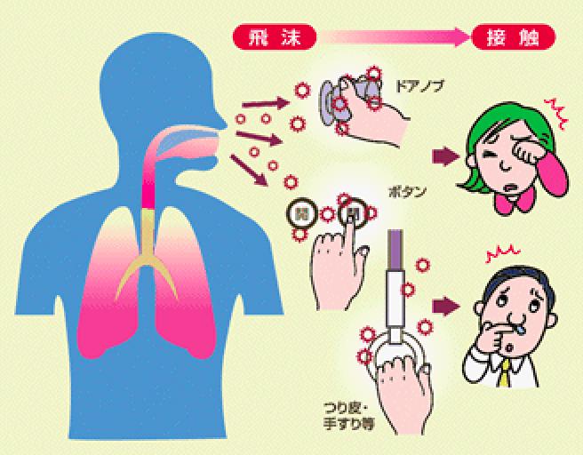 感染 エアロゾル 感染 空気